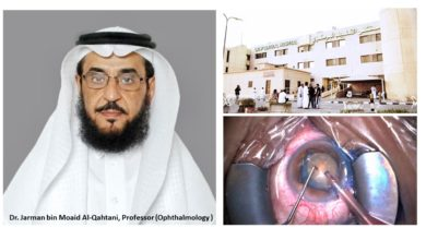 "Photo of Cataract removal with ""Phaco"" technique, for the first time in Qatif Central Hospital: A breakthrough for Cataract Patients"